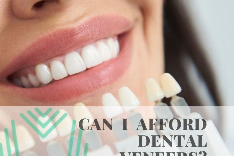 Raleigh can I afford dental veneers