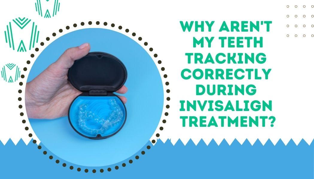 Invisalign teeth aren't tracking